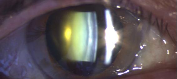 cataractevisuel3